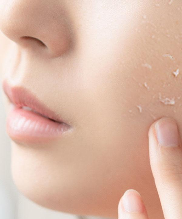 Пилинг-гель Маньо против воспалений и жирного блеска Manyo Galactomy Peeling Gel (75 ml)